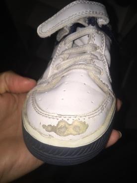 Puntera de unas zapatillas después de una semana de uso